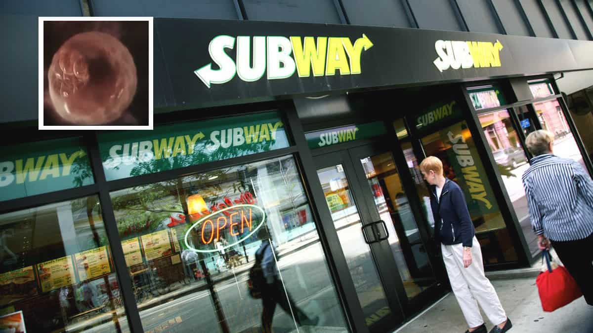 Shame: This Fetus Would've Been Subway's Two-Billionth Customer If It Weren't Aborted